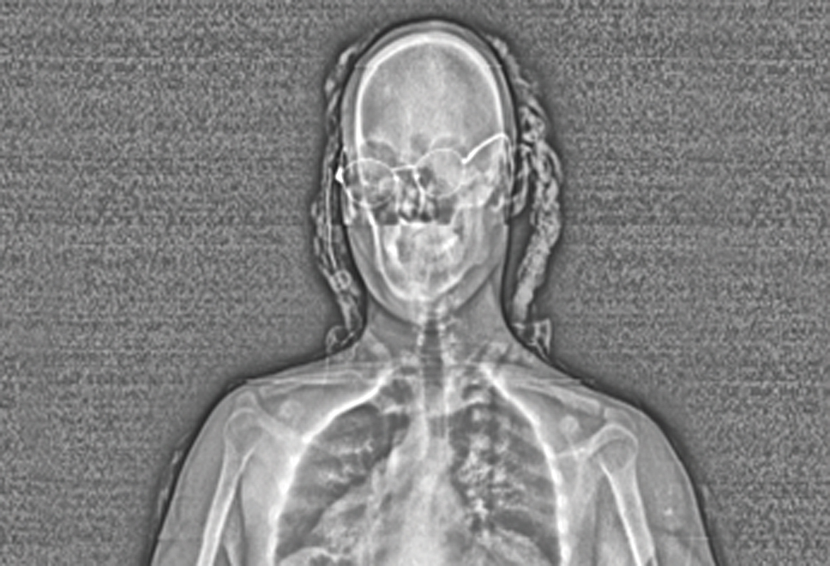 the full body scanner philosophy essay An article on full body scanners in its most recent newsletter, written by ross white of the hastings center, said the possibilities of harm and violation of privacy exist even if the scanned images are not stored.